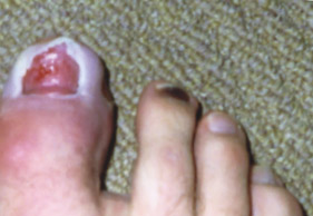 Runner's Toes